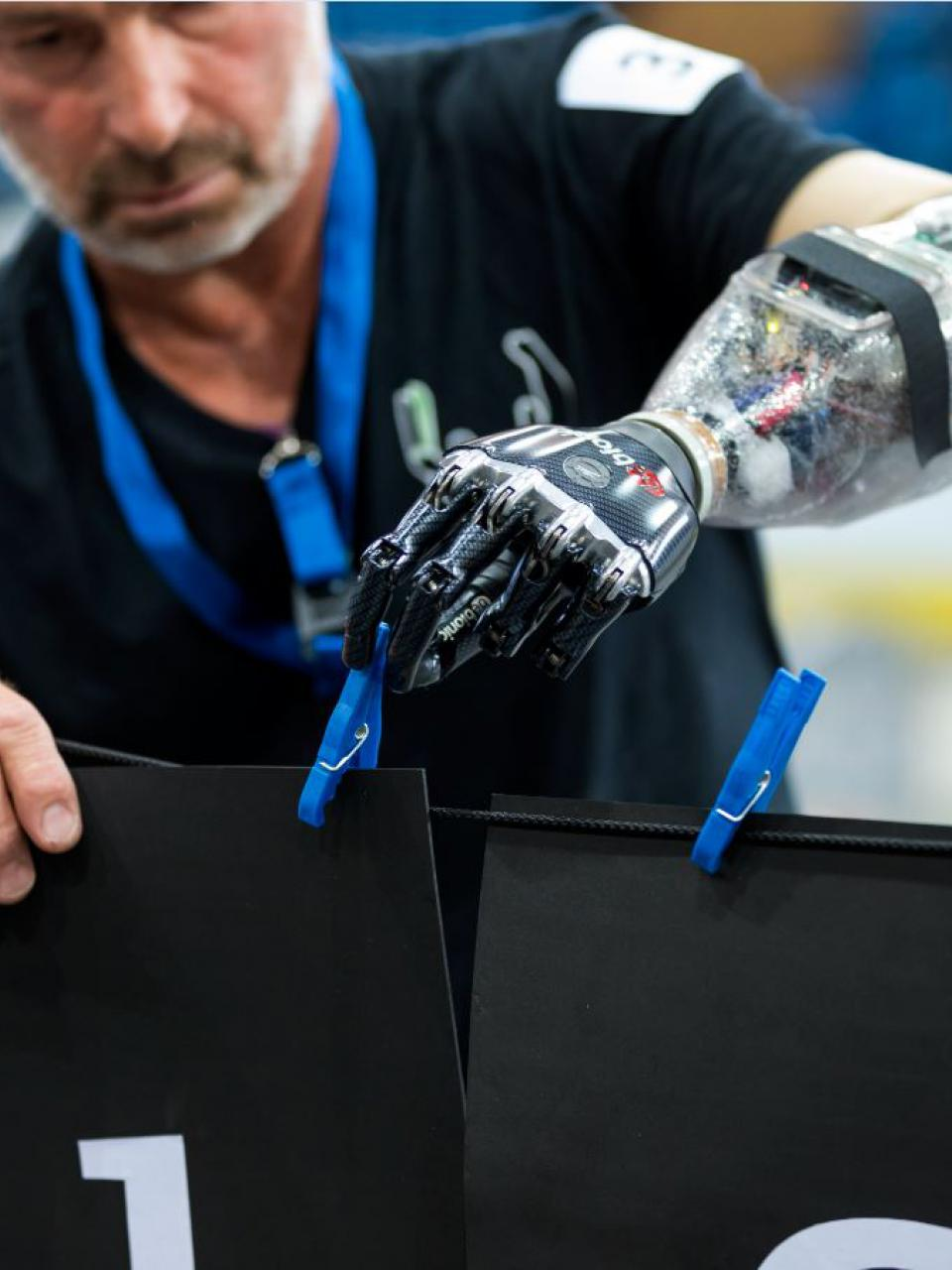 Motorised arm prostheses